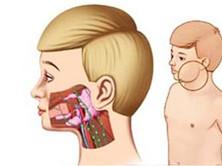 慢性复发性腮腺炎