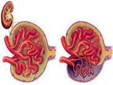 慢性肾功能不全