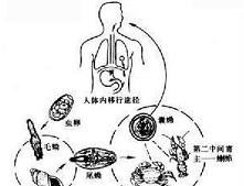 脑肺吸虫病