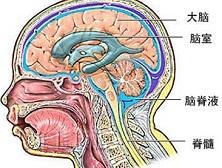 脑室内出血与血肿