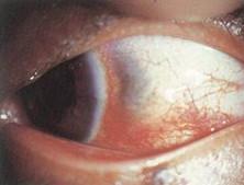 梅毒性鞏膜炎