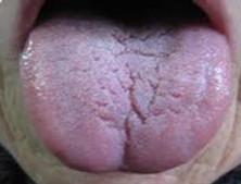 面癱唇腫裂紋舌綜合征