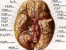 脑蛛网膜下腔出血