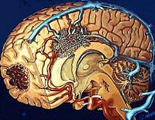脑动静脉畸形