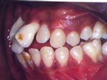 青少年牙周炎