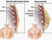 男性乳腺发育症