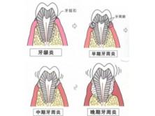 慢性根尖牙周炎