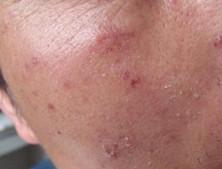 皮肤结核病