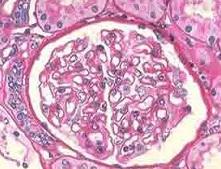 脑肝肾综合征