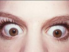 内分泌性眼球突出
