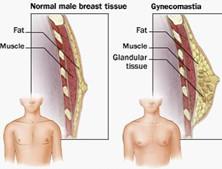 男性青春期乳房發育