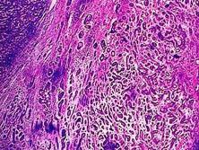 前庭大腺癌