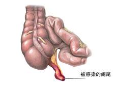 妊娠合并阑尾炎