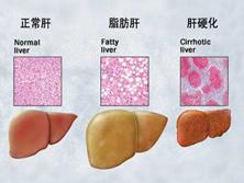 妊娠期急性脂肪肝