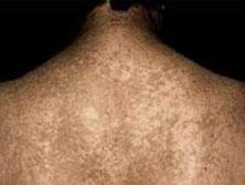 融合性网状乳头瘤病