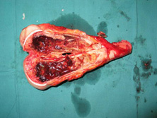 软组织肿瘤