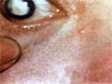 水痘-帶狀皰疹性葡萄膜炎