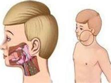 腮腺隙感染