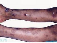 同種免疫性新生兒血小板減少性紫癜