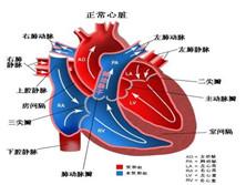 特发性肺动脉高压