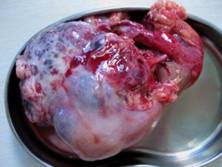 透明細胞癌