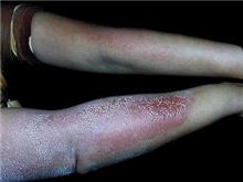物理性皮肤病