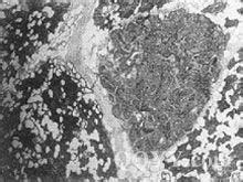 涎腺的未分化癌