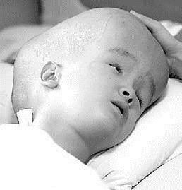 小兒后顱窩型腦積水綜合征