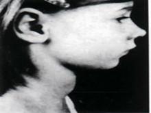小兒單純性甲狀腺腫