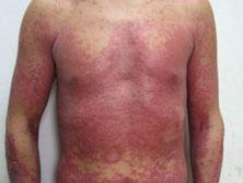 营养与代谢障碍皮肤病