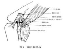 膝外側韌帶損傷