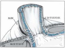 嬰幼兒胃食管反流