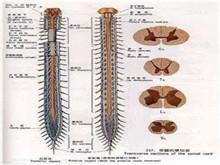 硬脊膜下膿腫