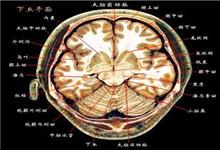 早期嬰兒型癲癇性腦病