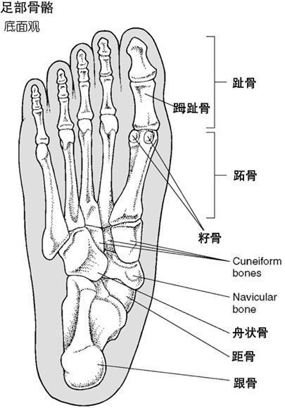 跖趾關節痛
