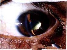 銀屑病關節炎及其伴發的葡萄膜炎
