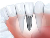 种植牙时效性,如何延长种植牙的寿命