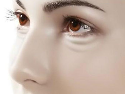 你的黑眼圈是什么颜色?