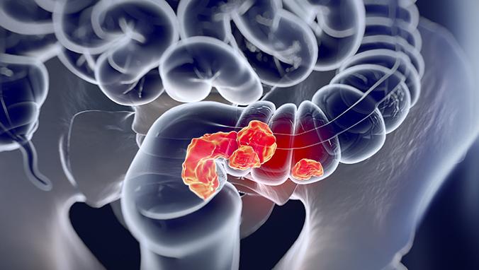 什么是食道瘤
