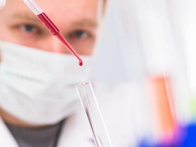 BRCA1基因突变致癌风险分析结果已经公布