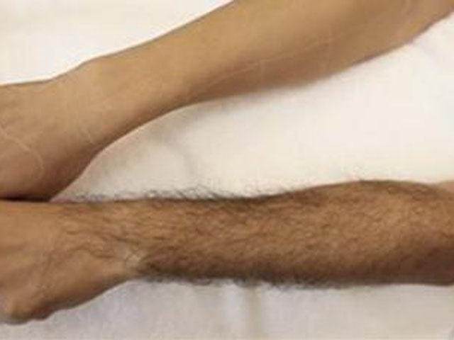 什么是激光脱毛?激光脱毛术后的注意事项