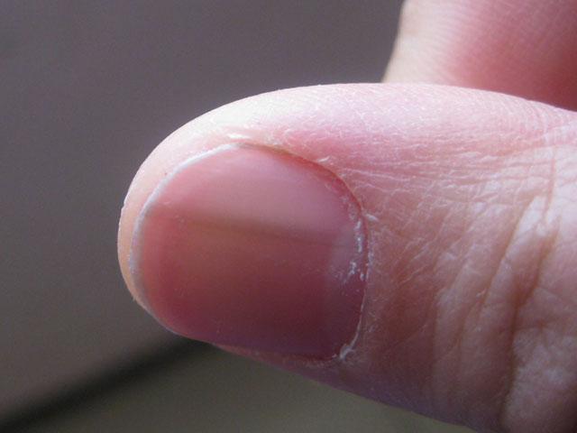 指甲上有竖纹是怎么回事?有竖纹小心是这些病